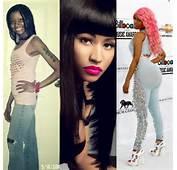 Nicki Minaj Plastic Surgery Before And After Photos Nose Job Butt